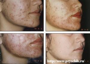 Прыщи на щеках стадии лечения