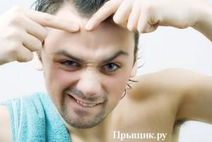 Прыщи на лице у мужчины